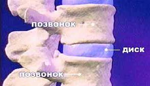 Что такое остеохондроз позвоночника?